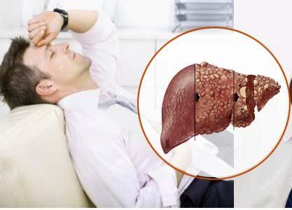 triệu chứng viêm gan, dấu hiệu ung thư gan, ung thư gan